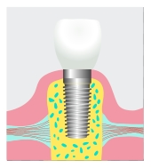 Dental implant in Farmington Hills