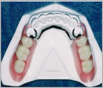 Partial Dentures, RPD dentures fabrication, valplast