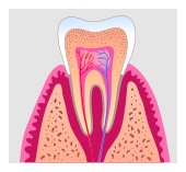 root canal treatment in Tujunga