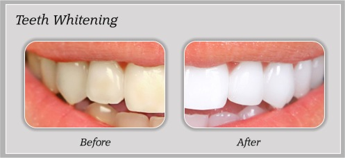 Teeth Whitening in Portland