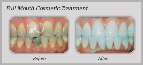 Full Mouth Cosmetic Treatment in Portland