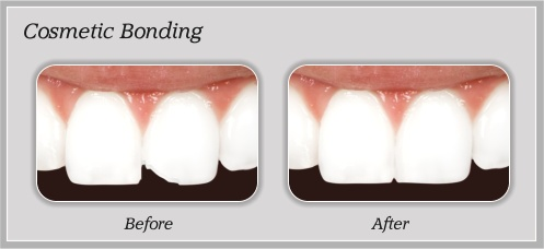 Cosmetic Bonding in Portland