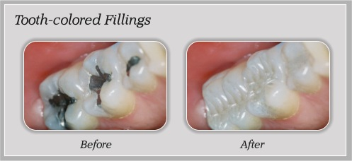 Tooth-colored Fillings in Portland