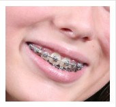 dental braces types