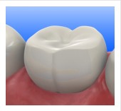 Tooth Colored Fillings Kettering