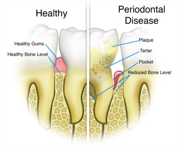 prevention of gum disease
