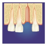 periodontal bone graft