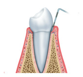 Periodontal Scaling & Root Planing